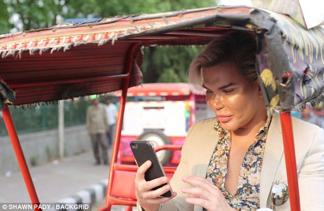 Human Ken Doll, Rodrigo Alves, 58th surgery, eye operation, Delhi