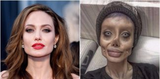 Angelina Jolie, Hoax, Sahar, Surgery, Plastic Surgery