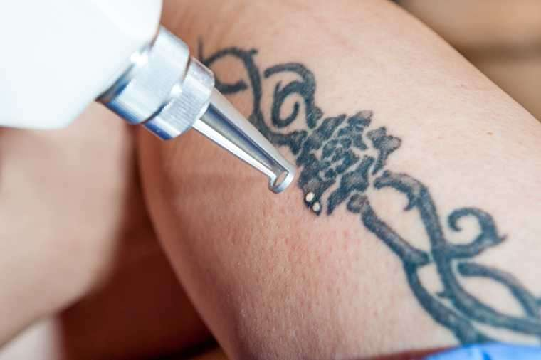 Think before the ink: Tattoos could be dangerous