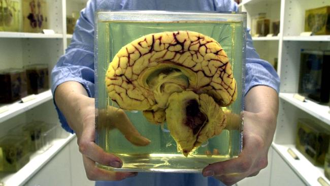 12-year-old, feels, completely fine, one-third, brain, removed, Newsmobile, Mobile News, News for kids, Kids News, India